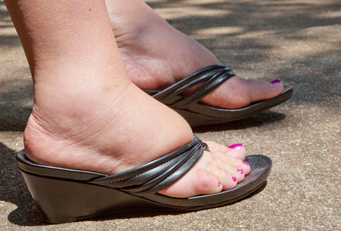 nogi-i-vashe-zdorovje.4