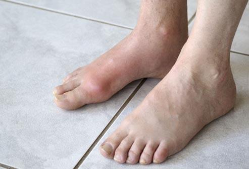 nogi-i-vashe-zdorovje.5