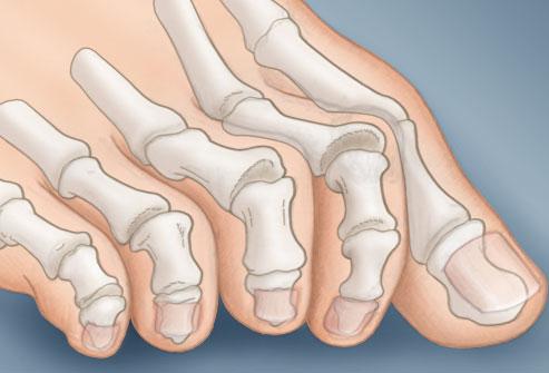 nogi-i-vashe-zdorovje.6
