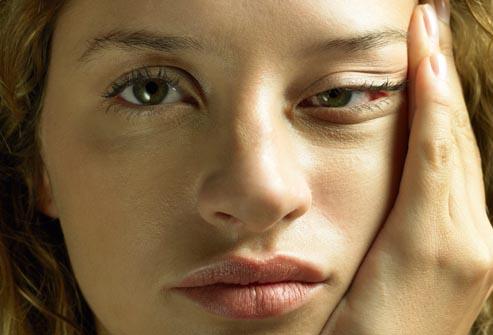 rukovodstvo-po-sindromu-hronicheskoj-ustalosti