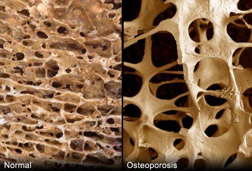 putevoditel-po-osteoporozu-chast-i