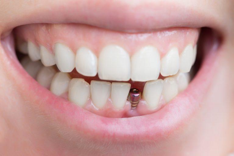 имплантация зубов на проспекте мира ротовирус